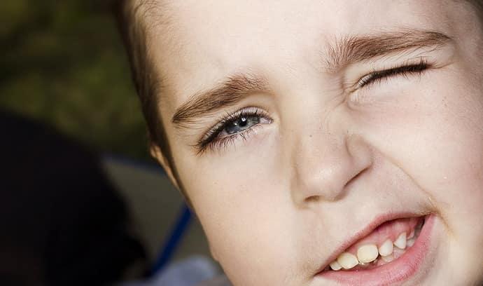 Осложнения после гиперкинеза у детей