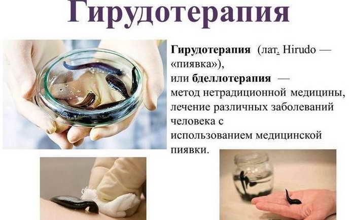 Чем помогают пиявки при грыже позвоночника