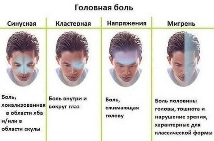 Характер головной боли при всд