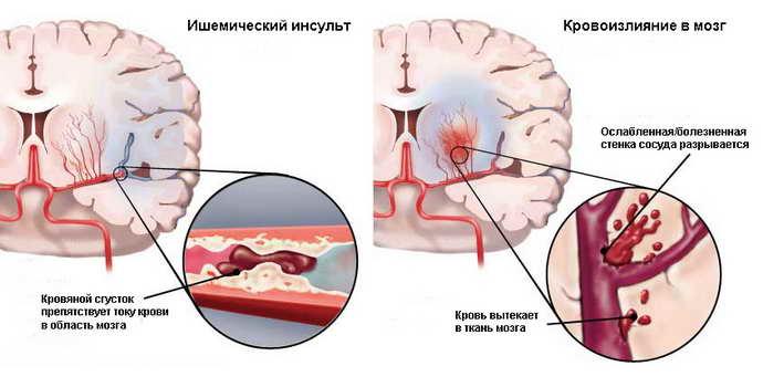 от чего бывает головокружение после инсульта