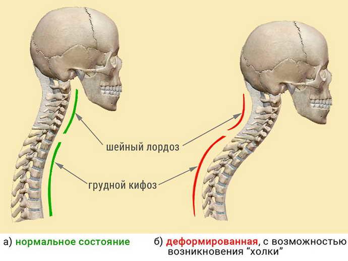 осложнение от грыжи шморля шейного отдела позвоночника симптомы и лечение