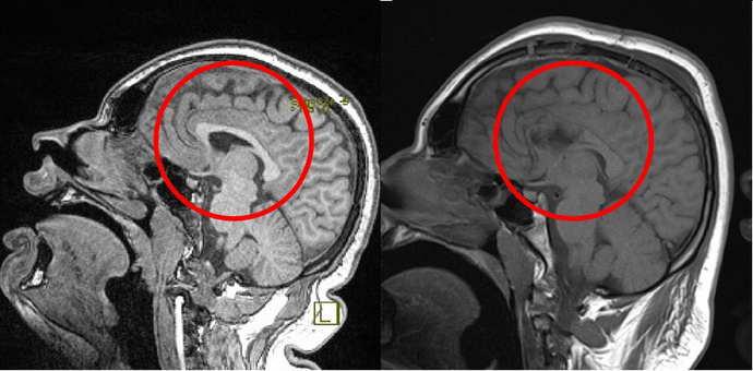 Гемисферектомия при эпилепсии
