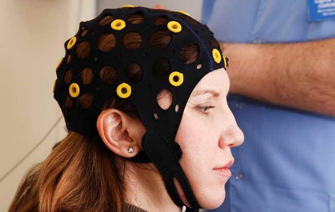 Внутричерепная регистрация ЭЭГ при эпилепсии