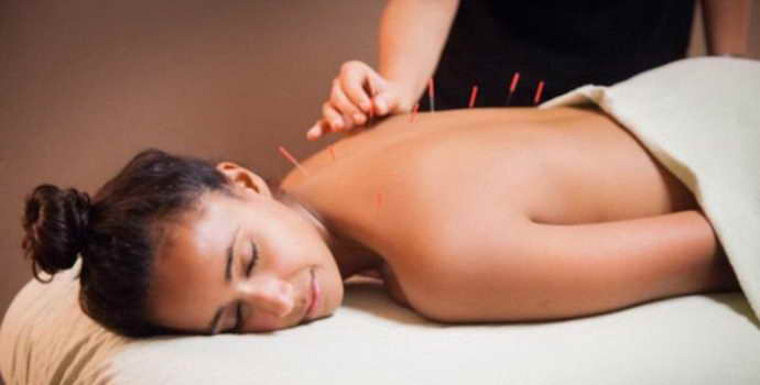 Польза и вред от иглоукалывания при остеохондрозе
