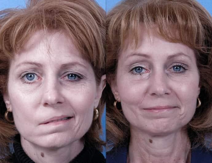 Признаки неврита лицевого нерва