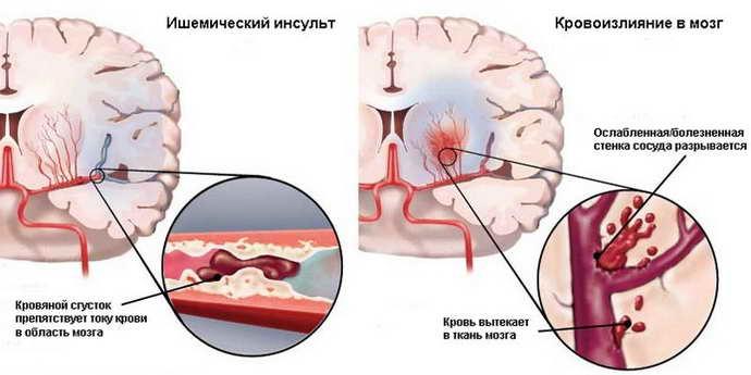 инсульт геморрагический левая сторона лечение
