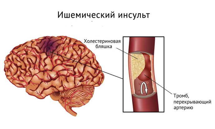 инсульт мозжечка и его виды