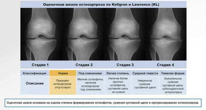 какие выделяют стадии остеохондроза