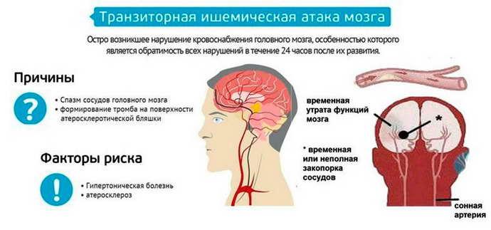 какие могут быть симптомы у инсульта
