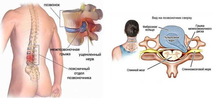 домашняя диагностика грыжи позвоночника