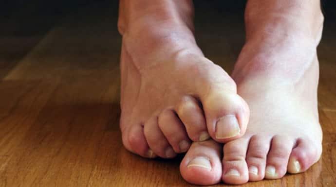 Почему болят ноги при корешковом синдроме