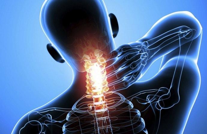 Почему возникает корешковый синдром шейного отдела