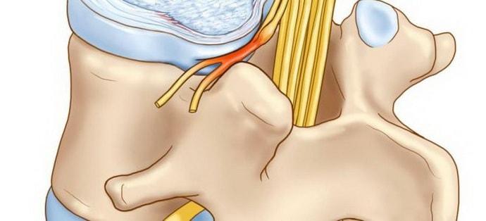 корешковый синдром шейного отдела симптомы лечение