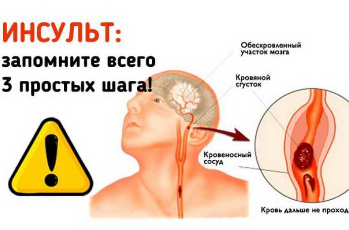 кожевниковская эпилепсия что ее провоцирует