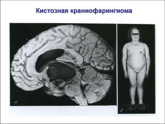 что такое краниофарингиома головного мозга