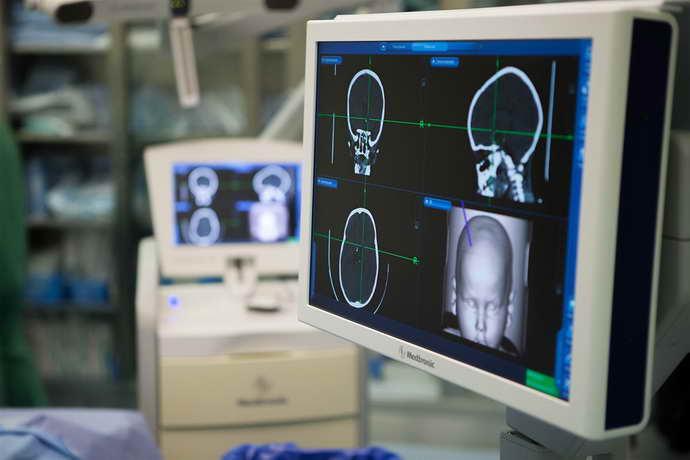чем лечится краниофарингиома головного мозга