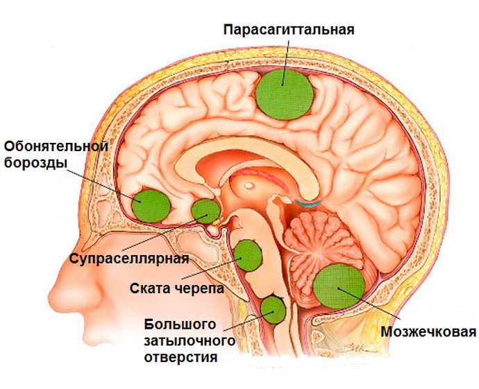 первые признаки эпилепсии