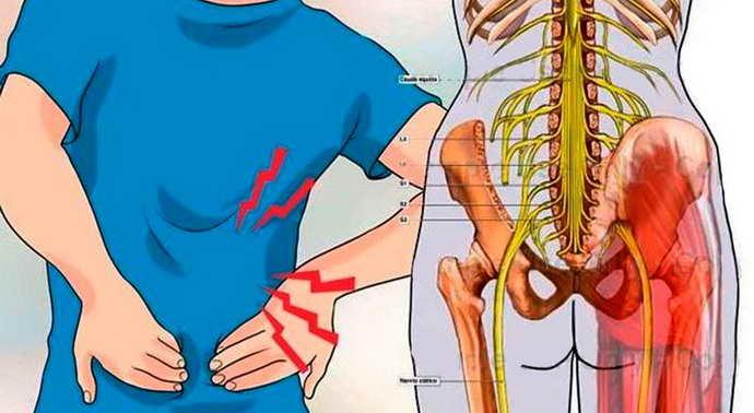 Причины и симптоматика проблем с седалищным нервом