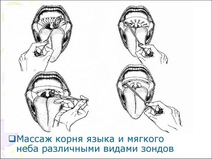 Логопедический массаж при дизартрии - как проводить, показания