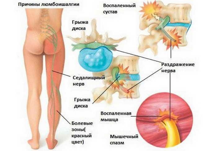 симптоматика любмаго