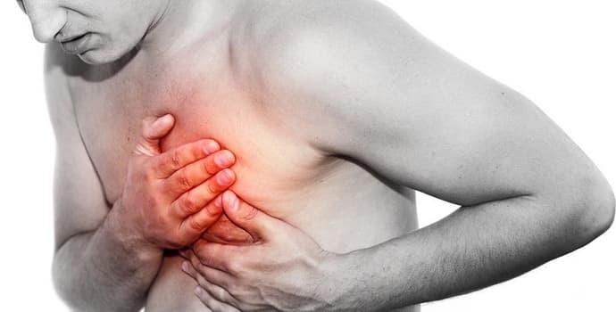 Межреберная невралгия: симптомы слева в области сердца