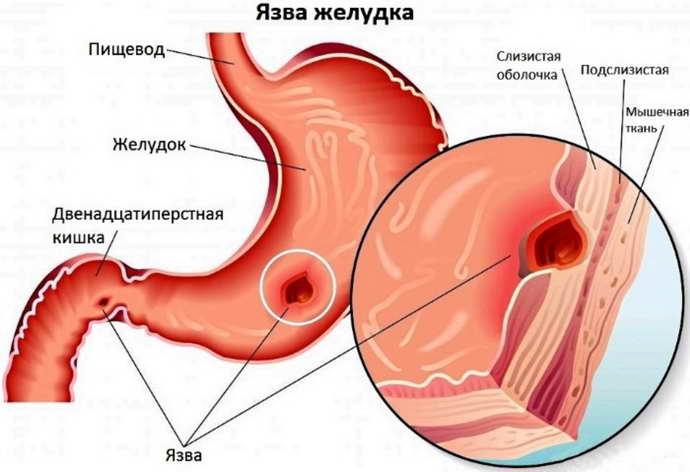 может ли от остеохондроза болеть желудок и как понять почему