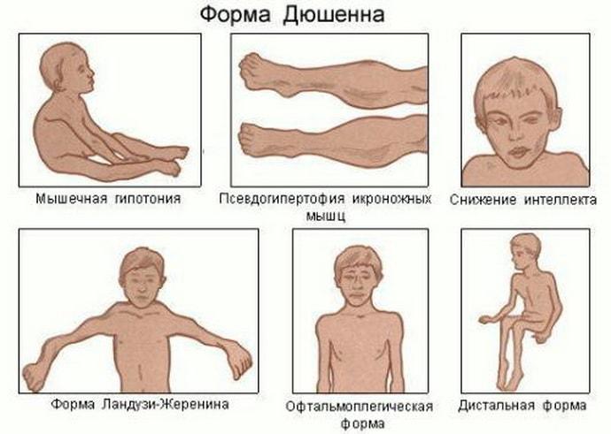 Почему развивается мышечная дистрофия