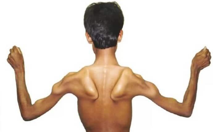 Как диагностировать мышечную дистрофию