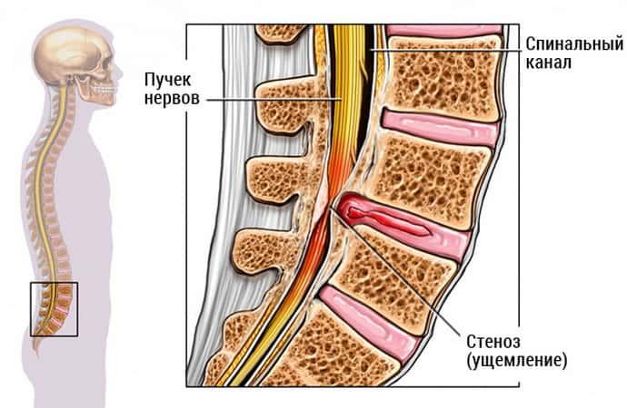 Немеет левая нога при остеохондрозе