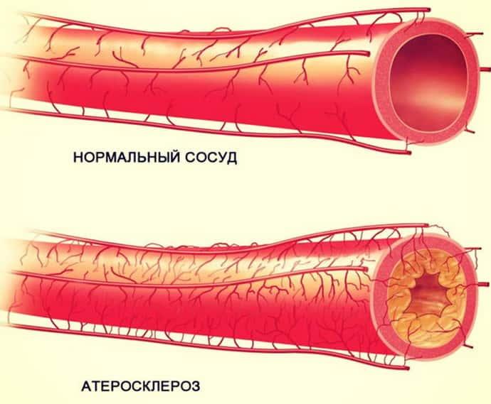 немеет левая рука при атеросклерозе