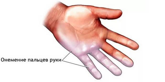 Как решается проблема онемения левой руки