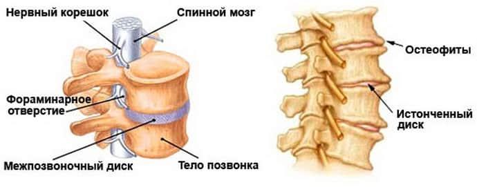 немеет левая ягодица причины при остеохандрозе
