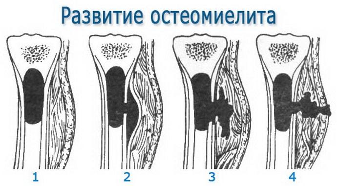 немеет левая ягодица причины при остеомиелите