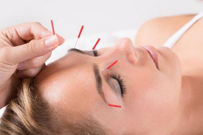 Иглоукалывание при онемении лица