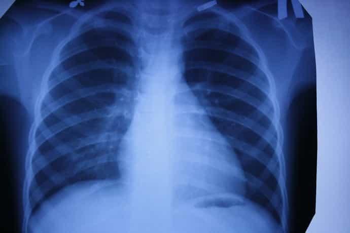 Рентген при онемении пальцев