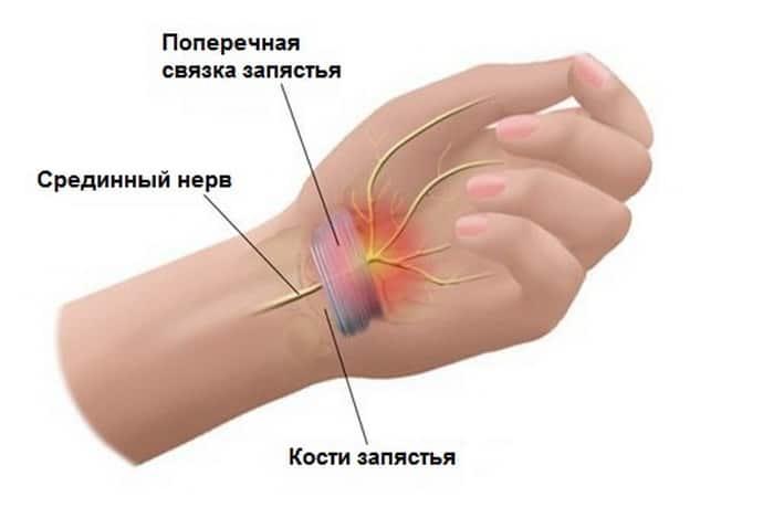 При туннельном синдроме немеют пальцы рук