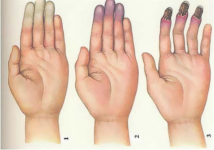 При болезни рейно немеют пальцы рук