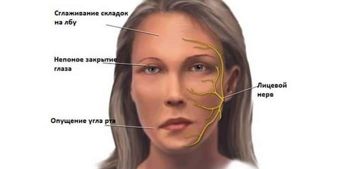 Как лечится невралгия тройничного нерва