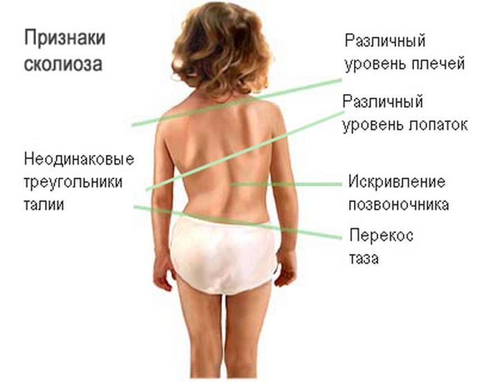 Особенности развития невралгии у детей