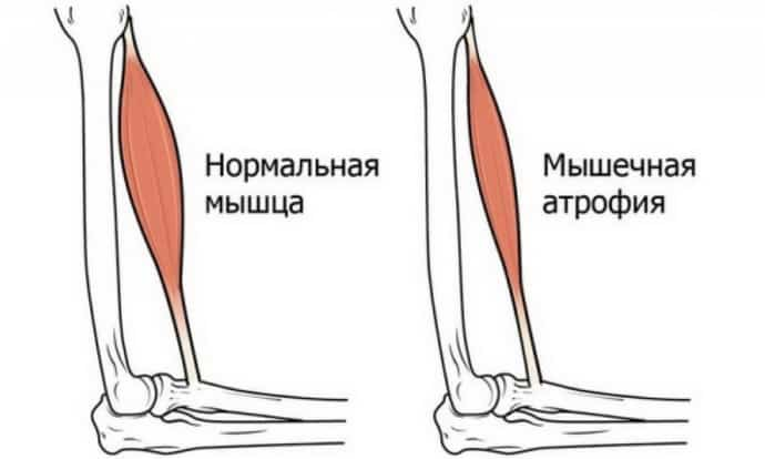 Мышечная атрофия при невралгии