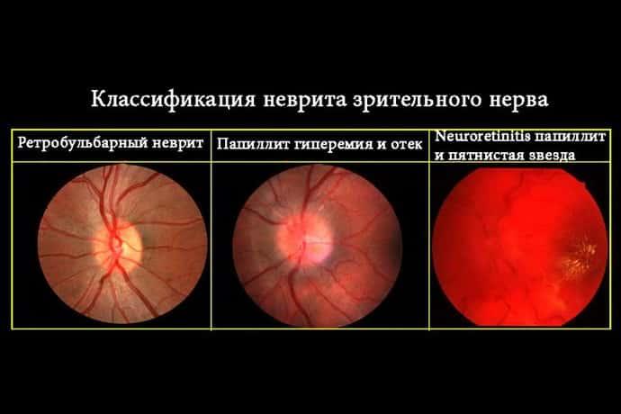 неврит это заболевание переферической нервной системы