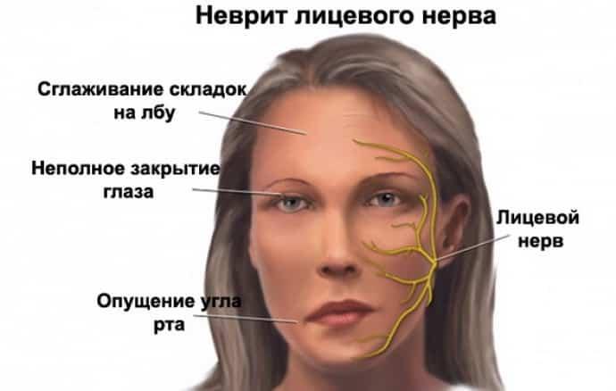 Как лечить неврит зрительного нерва