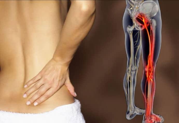 Чем грозит невропатия бедренного нерва, как лечить, чтобы не было осложнений