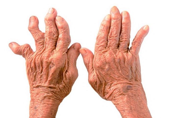 Осложнения невропатии срединного нерва