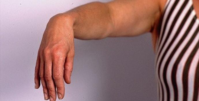 Компрессионно ишемическая невропатия срединного нерва