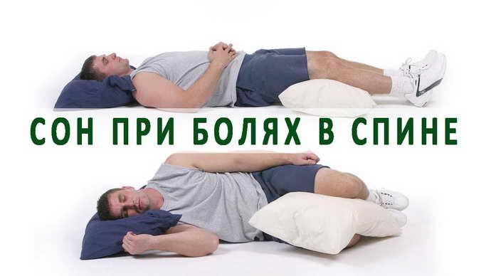 обострение остеохондроза как спать