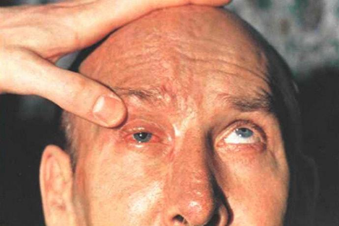 офтальмоплегия это неврологическое заболевание