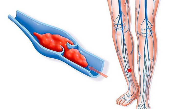 онемение ноги от колена до стопы при болезнях с сосудами