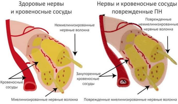 онемение ноги от колена до стопы при нейропатии