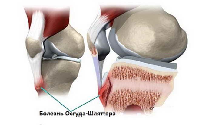 остеохондроз коленного сустава классификация